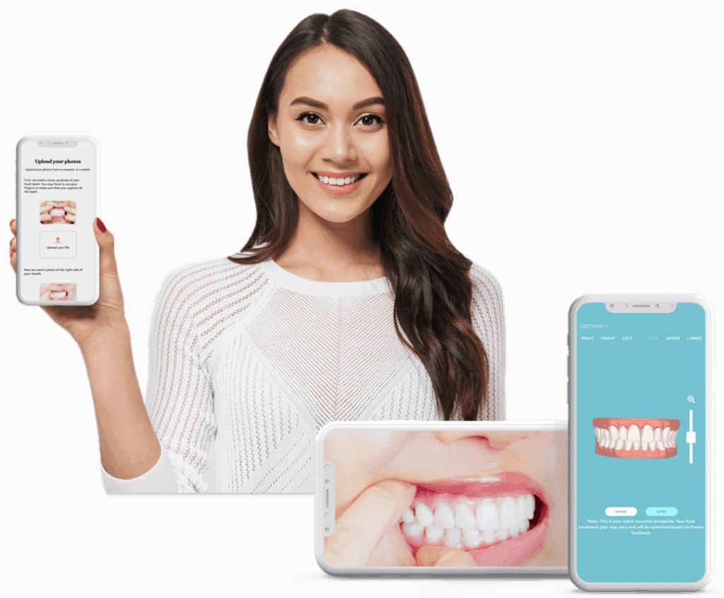 Best Teeth Straightening Aligners - OrthoFX