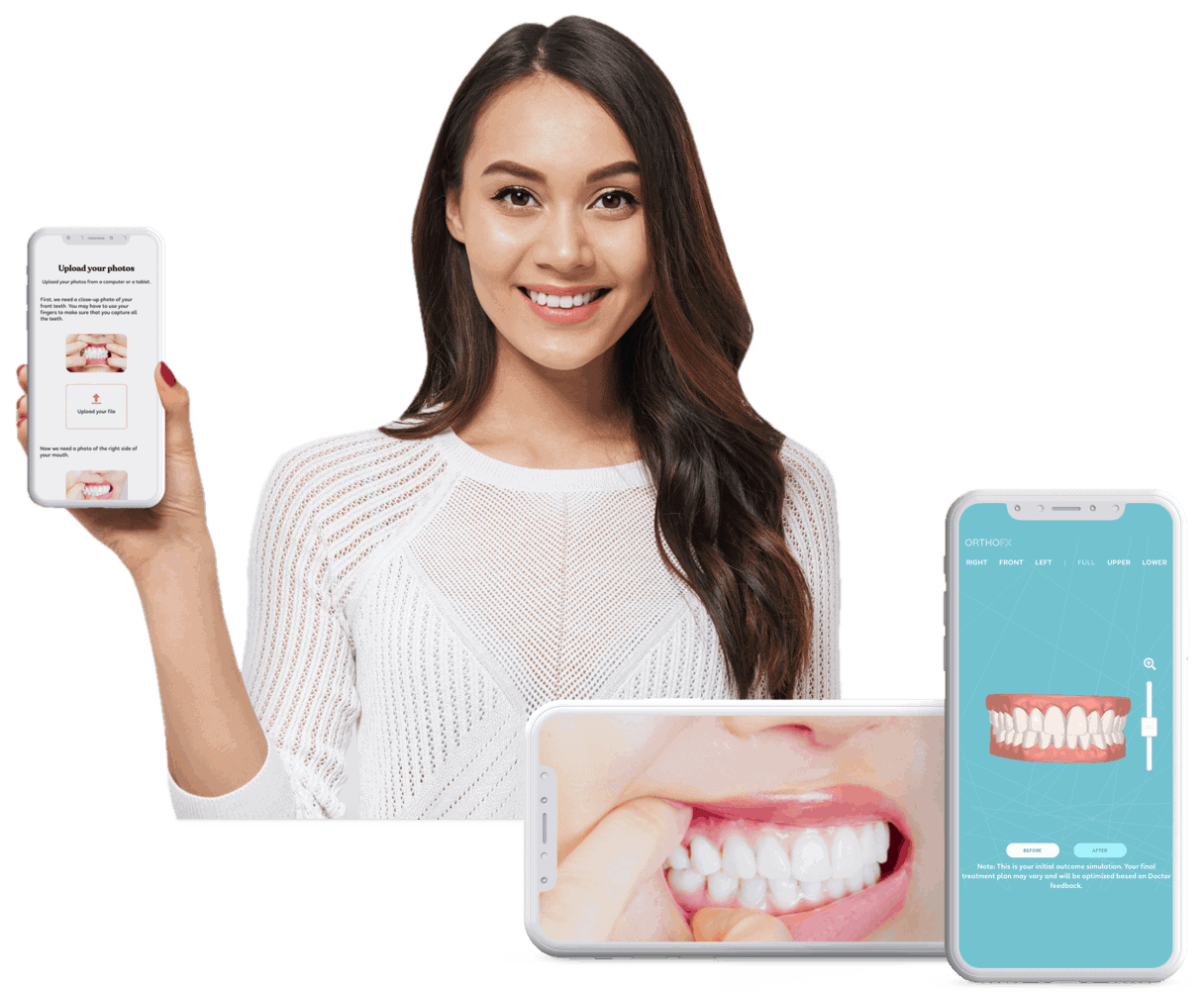Best Teeth Straightening Aligners - OrthoFX