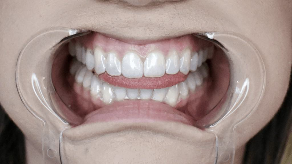 clear aligner treatment - OrthoFX