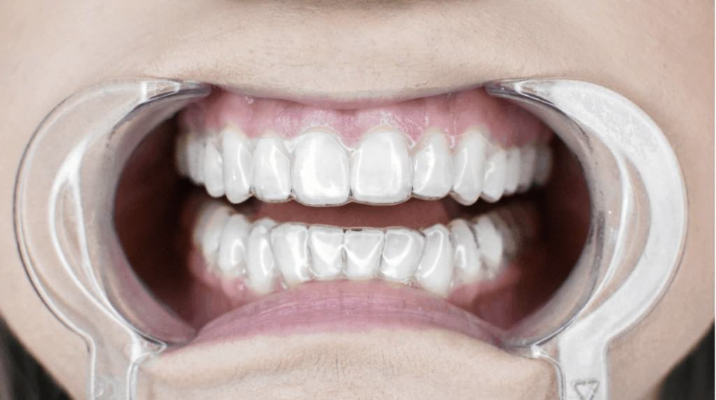 best clear aligners - OrthoFX
