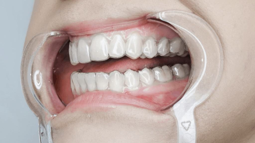 bite treatment using clear aligners