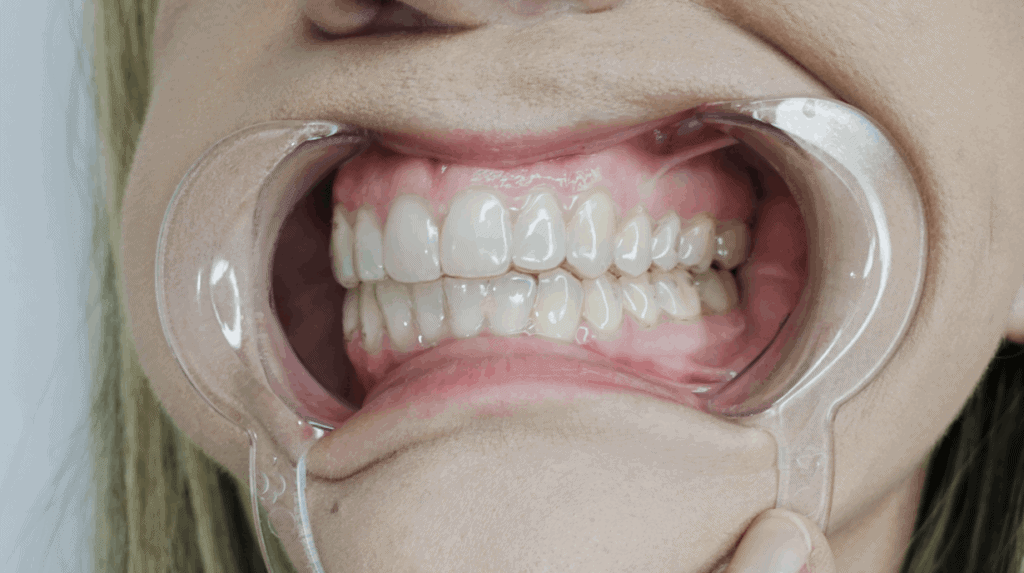 front bite clear aligners - OrthoFX