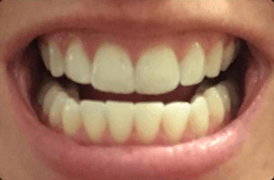Bite Teeth Straightener