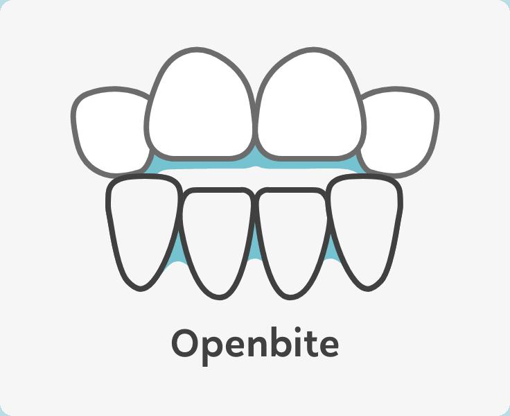 openbite