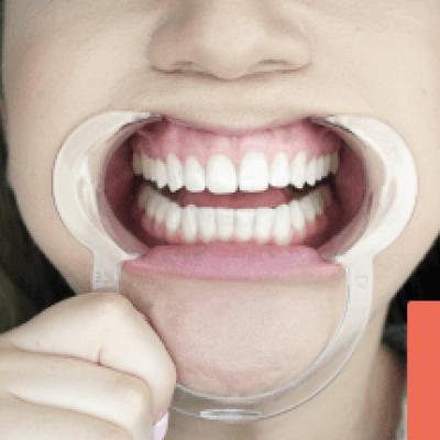 home oral care
