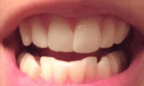 lower teeth straightening